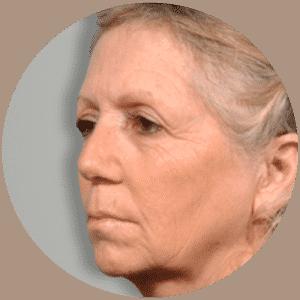 Lifting facial - Fotos de antes y después - Reseñas