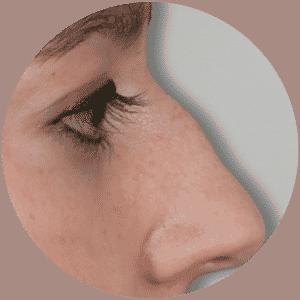Revisión de la nariz antes y después de las fotos