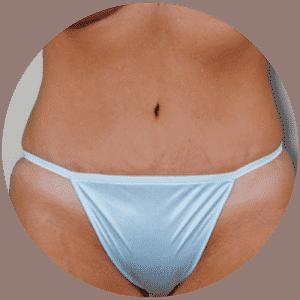 Abdominoplastia - Fotos de antes y después -Revisiones