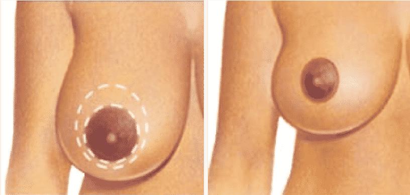 Reducción de senos - Levantamiento de senos