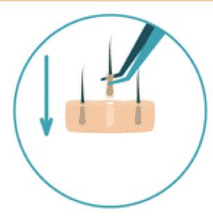 Implantación de injertos - HD FUE