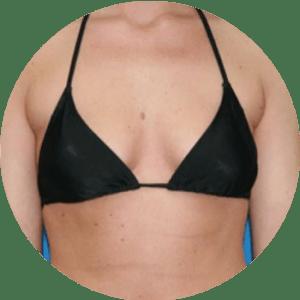 Aumento de senos - Fotos de antes y después - Las mejores críticas
