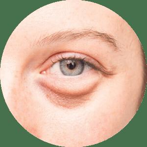 Cirugía de párpados - Fotos de antes y después - Las mejores críticas