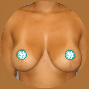 Levantamiento de senos - Fotos de antes y después - Mejores críticas