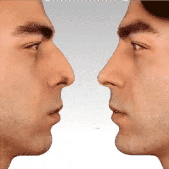 Rinoplastia - Fotos de antes y después - Las mejores críticas