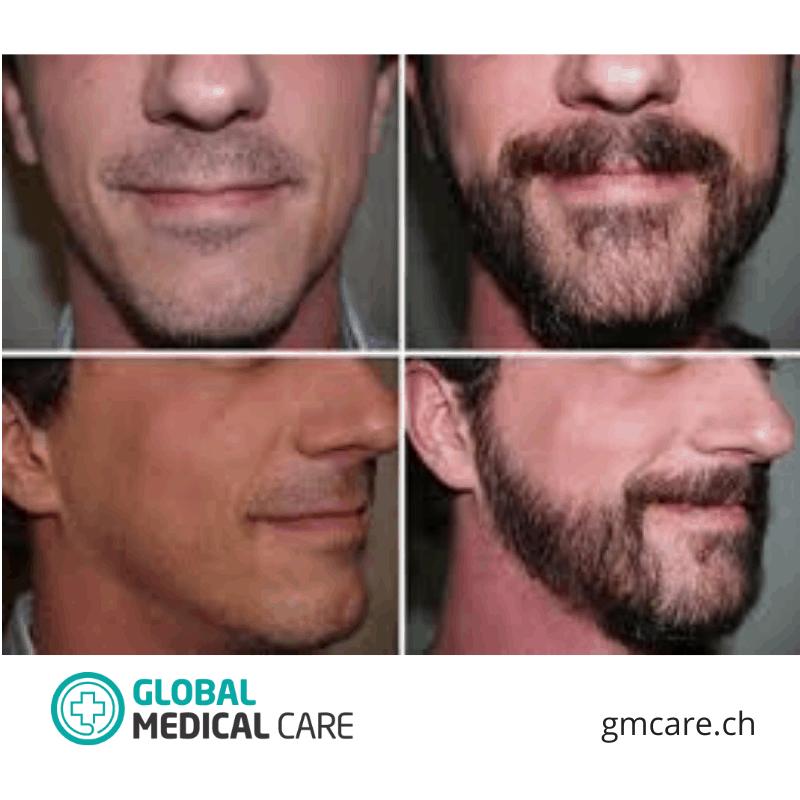 Transplante de barba - Fotos de antes y después - Reseñas