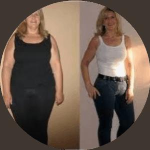 Cirugía bariátrica - Antes y después de las fotos Mejores reseñas