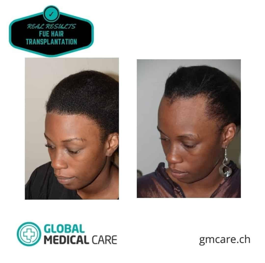 Fotos de antes y después del trasplante de cabello en mujeres - Reseñas